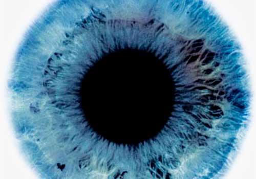 Аномалии рефракции глаза полностью устраняются