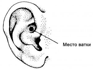 Расположение смоченной маслом ваты на ухе.